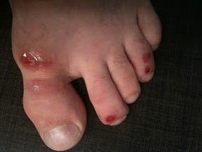 Mat burn can be caused by skin rubbing on surfaces such as wrestling mats, studio floors of martial arts schools, basketball courts, football equipment and ...