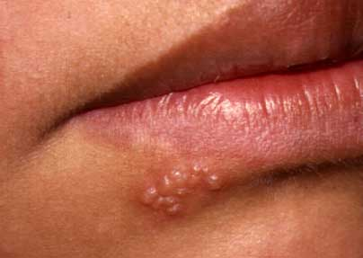 herpes simplex